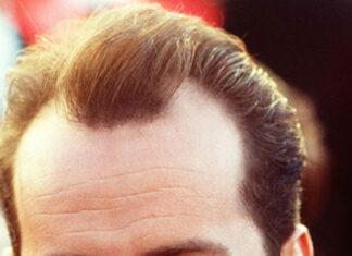 Przeszczep włosów u dzieci - czy to bezpieczne